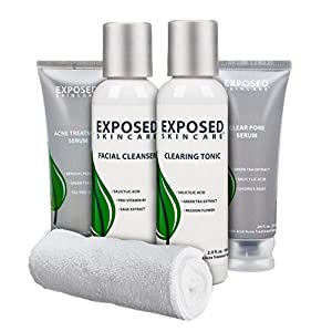Exposed 4-Step Acne Treatment Kit (30 Day and Travel Size) Exclusively by Exposed Skin Care for all Severities of Acne and Oily Skin, Includes Cleanser, Toner, and Dual Treatment Serums