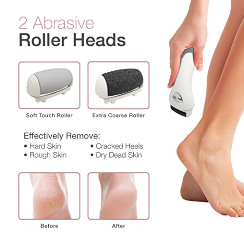 Electric Foot File, Rechargeable & Waterproof Callus Remover Pedicure Tools Ideal for Dead, Hard and Cracked Skin with Extra Roller Head and Cleaning Brush & Upgraded Two Speed Motor by LP LivingPro (Image #2)