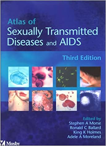 Atlas of sexually transmitted diseases and aids download games