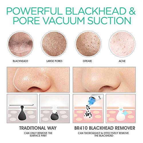 VOYOR Blackhead Remover Vacuum Suction Facial Pore Cleaner Electric Acne  Comedone Extractor Kit