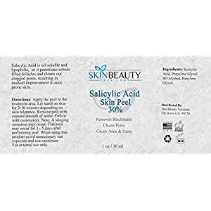 SALICYLIC Acid 30% Chemical Peel with Beta Hydroxy BHA For Rosacea, Acne, Oily Skin, Blackheads, Whiteheads, Clogged Pores, Seborrheic Keratosis & More by Skin Beauty Solutions – 1 oz / 30 ml