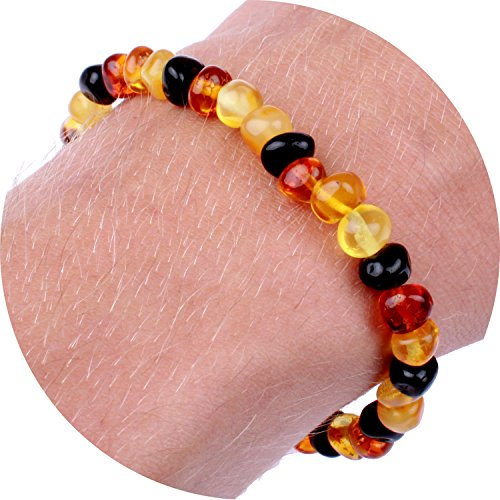 baltic-amber-bracelet-anklet-for-women-mom-men-adults-carpal-tunnel-arthritis-headache-migraine-pain