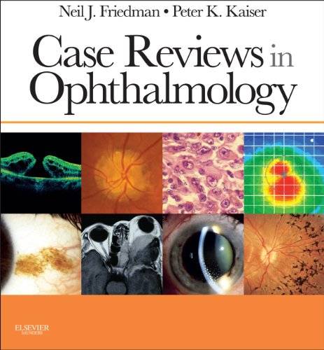 Case Reviews in Ophthalmology E-Book (Expert Consult Title: Online + Print)