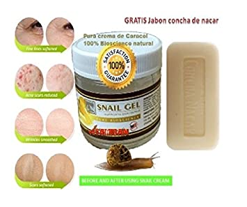 GEL Crema Para Manchas de La Cara:Ayuda a eliminar las Manchas Obscuras del Acne