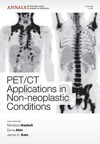 PET CT Applications in Non-Neoplastic Conditions, Volume 1228 (Annals of the New York Academy of Sciences)