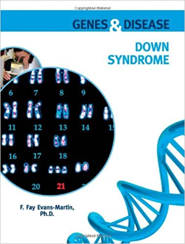 Amazon com: Down Syndrome (Genes & Disease) (9780791096444