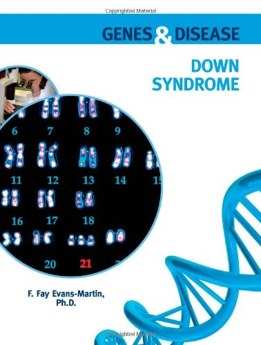 Read Online Down Syndrome (Genes and Disease) pdf epub