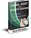 HAND FOOT  AND  MOUTH DISEASE (HFMD): Prevention, Management And Treatment