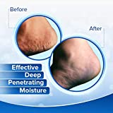 Dermal Therapy Heel Care Cream - Moisturizing