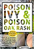 Poison Ivy & Poison Oak Rash: Heal in a weekend, FREE and from home.