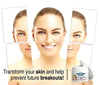 Best New Acne Treatment - Works better than other facial cleansing care products and exfoliators. Contains alpha beta, glycolic, salicylic, and lactic acids. No need for expensive dermatology chemical peels. Ease away, give relief with aid to a pimple wit