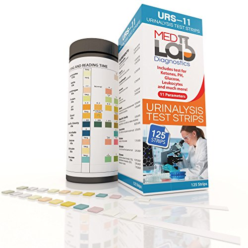 Best Diabetes Urinalysis Strips