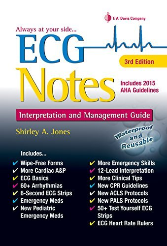ECG Notes: Interpretation and Management Guide by Shirley A. Jones MSEd MHA MSN EMT-P RN (2016-03-17)