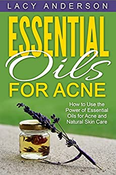 Essential Oils for Acne: How to Use the Power of Essential Oils for Acne and Natural Skin Care by [Anderson, Lacy]