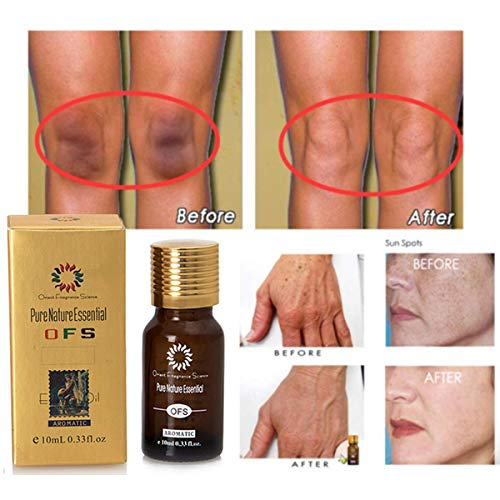 Scar Cream,AUKUK Ultra Brightening Spotless Oil Reduces the Appearance of Old & New Scars for Wrinkles, Stretch Marks, Burns, Enlarged Pores(3PCS)