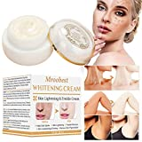 Best Body Lotion To Fade Age Spots - Whitening Cream for Face, Dark Spot Corrector, Freckle Review