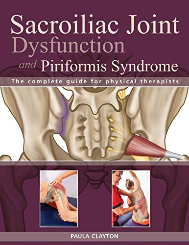 Sacroiliac Joint Dysfunction and Piriformis Syndrome: The Complete Guide for Physical Therapists (Sacroiliac Joint Exercises For Stability And Pain Relief)