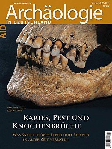 Karies, Pest und Knochenbrüche Broschiert – 20. Februar 2013 Joachim Wahl Albert Zink Pest und Knochenbrüche 3806225850