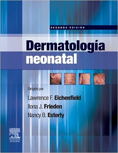 Amazon.com: Dermatología neonatal (Spanish Edition) eBook ...