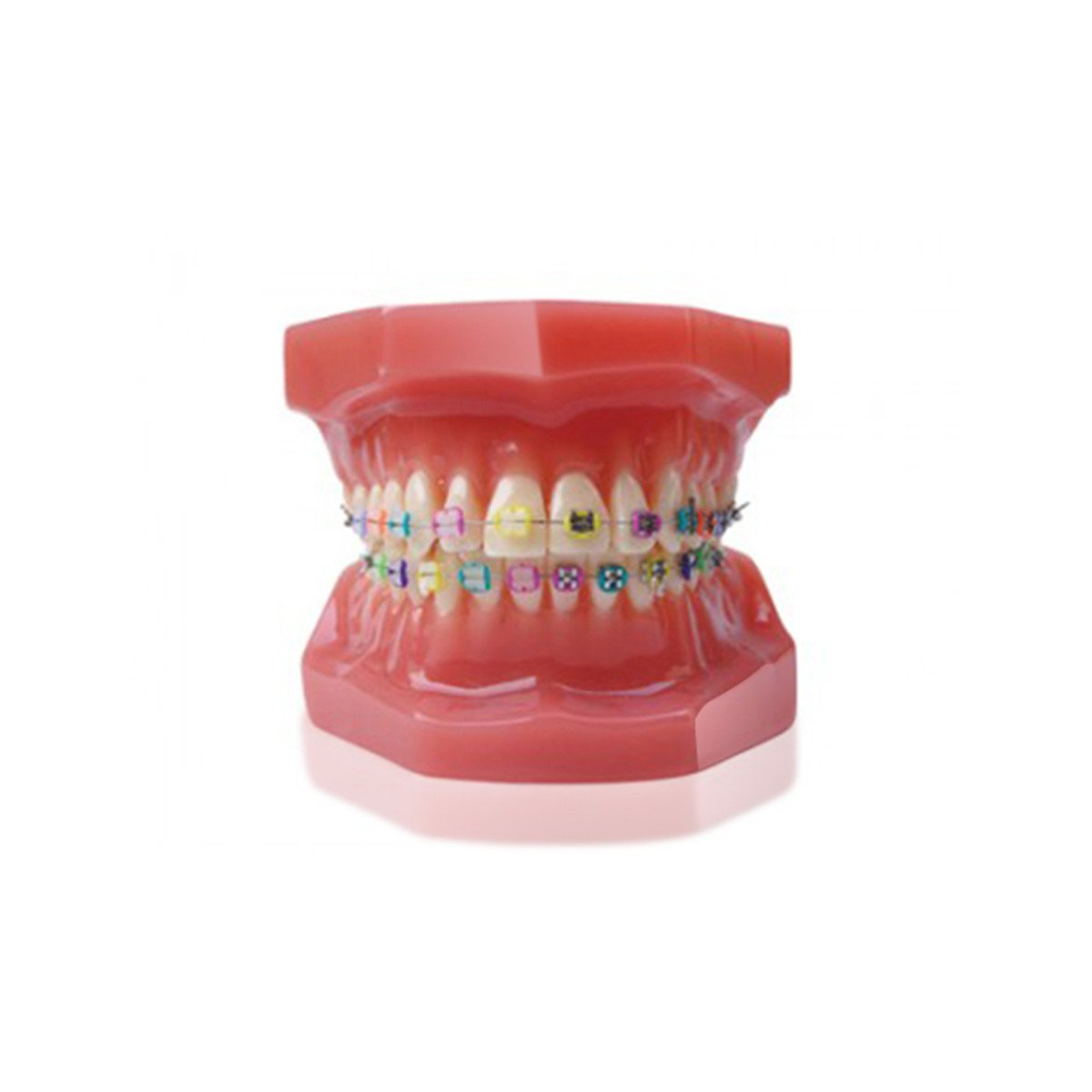 Teeth Model,Fencia Dental Orthodontic Teeth Study Model with Metal and Ceramic Brackets