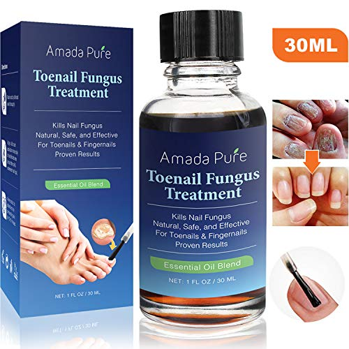 Toenail Fungus Treatment, Nail Fungus Treatment, Fungus Stop, Fingernail Fungus, Fungi Nail & Anti Fungal Nail Solution, Nail Fungus Remover, Toenail Fungus Medication 1 Fl. Oz (30ml)