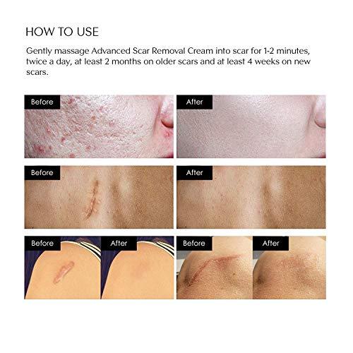 Buy scar fading cream for face