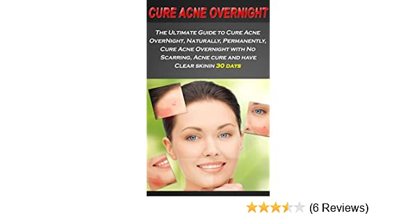 what helps acne overnight