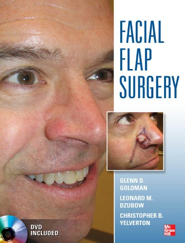 Facial Flaps Surgery - http://medicalbooks.filipinodoctors.org