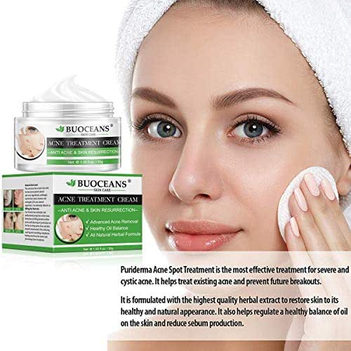 Acne Treatment, Acne Removal Cream, Pimple Treatment, Face Skin Repair Cream, Acne Spots Treatment Cream, Get Rid of acne & Pimples (1oz)