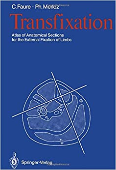 Book Transfixation: Atlas of Anatomical Sections for the External Fixation of Limbs