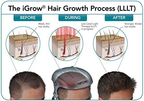 iGrow Laser Hair Growth Helmet: Restoration & Regrowth Treatment System for Hair Loss - Natural Thinning, Balding, and Alopecia Solution for Women and Men - FDA Cleared Low Level Laser Device