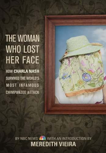The Woman Who Lost Her Face: How Charla Nash Survived the World's Most Infamous Chimpanzee Attack
