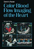 Color Blood Flow Imaging of the Heart, Redel, Dierk A., 364271174X