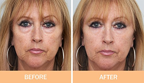 3 Minute Face Lift Cream - 4