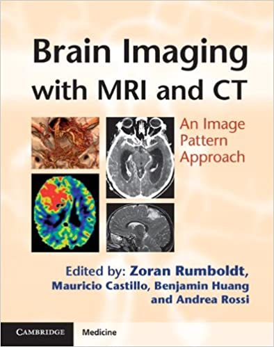 Brain Imaging with Image Pattern