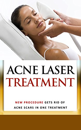 Acne Laser Treatment : New Procedure Gets Rid of Acne Scars in One Treatment (At Home Laser Treatment For Stretch Marks)