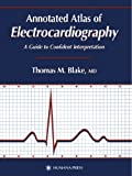 img - for Annotated Atlas of Electrocardiography: A Guide to Confident Interpretation (Contemporary Cardiology) book / textbook / text book