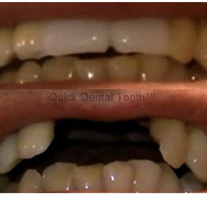 wie bekomme ich meine zahnprothese wieder weiß