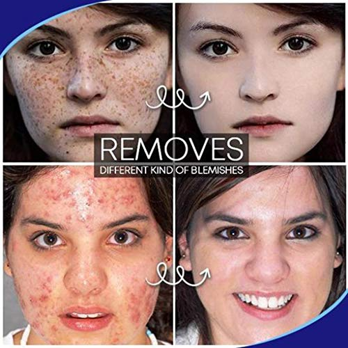 Louyue Freckle Remover,Dark Spot Corrector,Skin Lightening,Brightening Serum for Face Dark Spots Freckles Sun Spots Melasma Fade Hyperpigmentation Even Skin Tone Anti Aging Skin Care (30g)