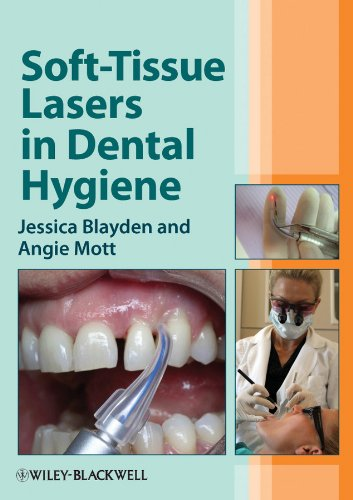 Download Soft-Tissue Lasers in Dental Hygiene Pdf
