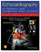 Echocardiography in Pediatric and Congenital Heart Disease: From Fetus to Adult 3e Cloth