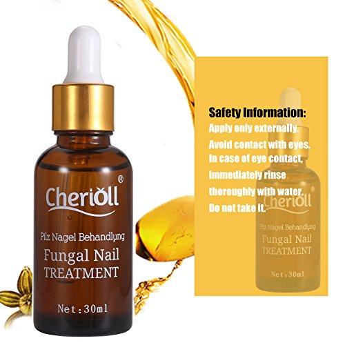 Nail Fungus Oil Nail Care,Nail Fungus Treatments,Fungus Stop,Nail Care Treatment of Anti-Fungal Solution,Effective against nail fungus 30ml by Cherioll (Image #2)