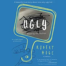 Ugly: A Beautiful True Story about One Very Ugly Kid Audiobook by Robert Hoge Narrated by Robert Hoge