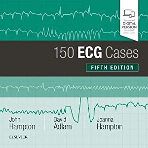 150 ECG Cases, 5e, Paperback Paperback – 7 May 2019
