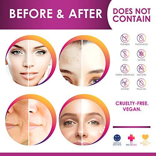 51RkZJSKMxL - ACTIVSCIENCE Whitening Cream - Powerful Skin Lightening Cream for Face & Body. Dark Spot, Melasma & Hyperpigmentation Treatment. 2 fl oz.