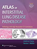 Atlas of Interstitial Lung Disease Pathology, Andrew Churg, 1451176430