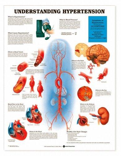 Understanding Hypertension Anatomical Chart Unmounted-9798PU