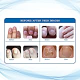 Fungus Stop, Fungus Treatment, Anti Fungus Nail