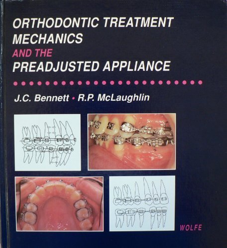 Orthodontic Treatment Mechanics and the Preadjusted Appliance