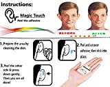 New Non-Surgical Otoplasty Magic Touch Ear